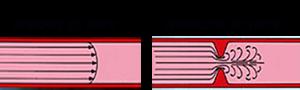 טיניטוס אובייקטיבי